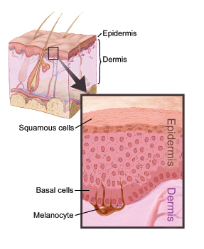 This picture shows the layers of the skin.